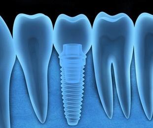 Implantes dentales Madrid