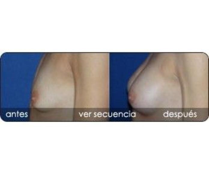Aumento mamario: Servicios de Clínica Dr. Javier Cerqueiro Cirugía Plástica