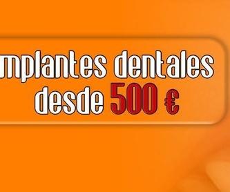 Implantes dentales: Servicios de Clínica Implanteoral Milladoiro