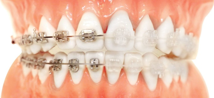 Ortodoncias: Tratamientos de Clínica Dental Sant Jordi