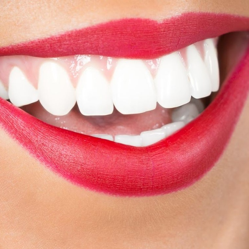 Estética dental: Servicios de CEO Clínica Dental
