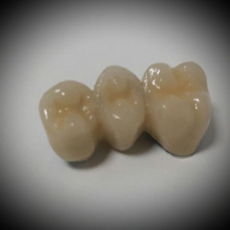 Prótesis fijas en metal sinterizado y fresado: Laboratorio Dental de Laboratorio de Prótesis Dental