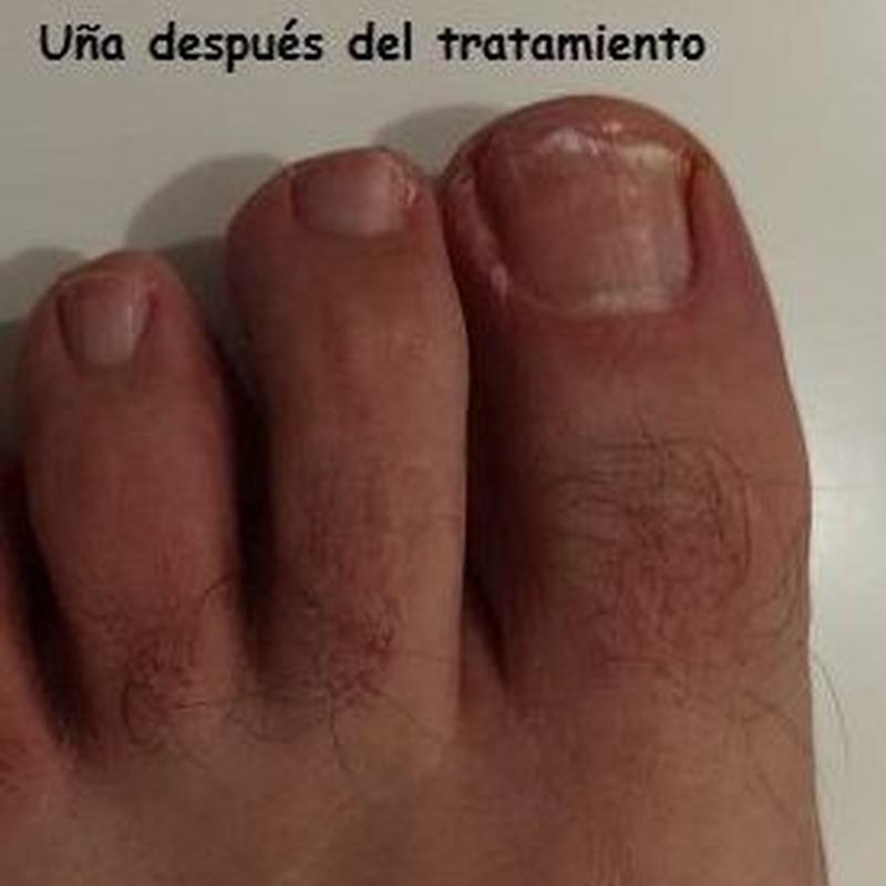 Podología general: Tratamientos de Clínica Payá Podología