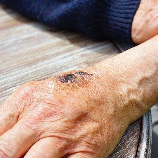 Prevención y tratamiento de las escaras