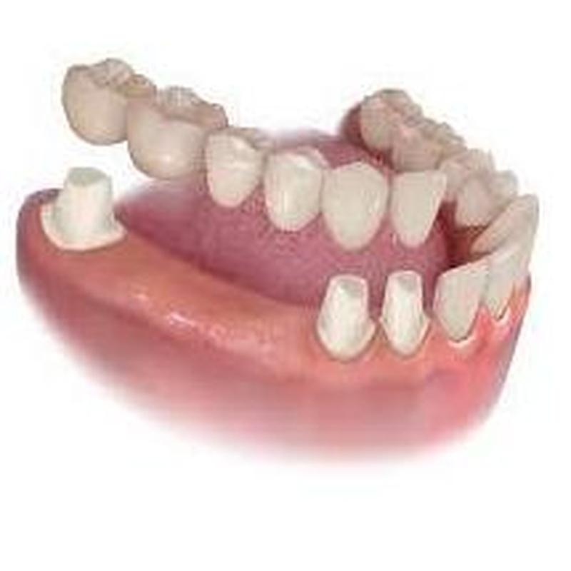 Puentes: Tratamientos de Clínica Dental Tucán