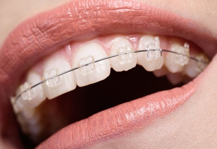Ortodoncia: Servicios de El Queixal del Seny