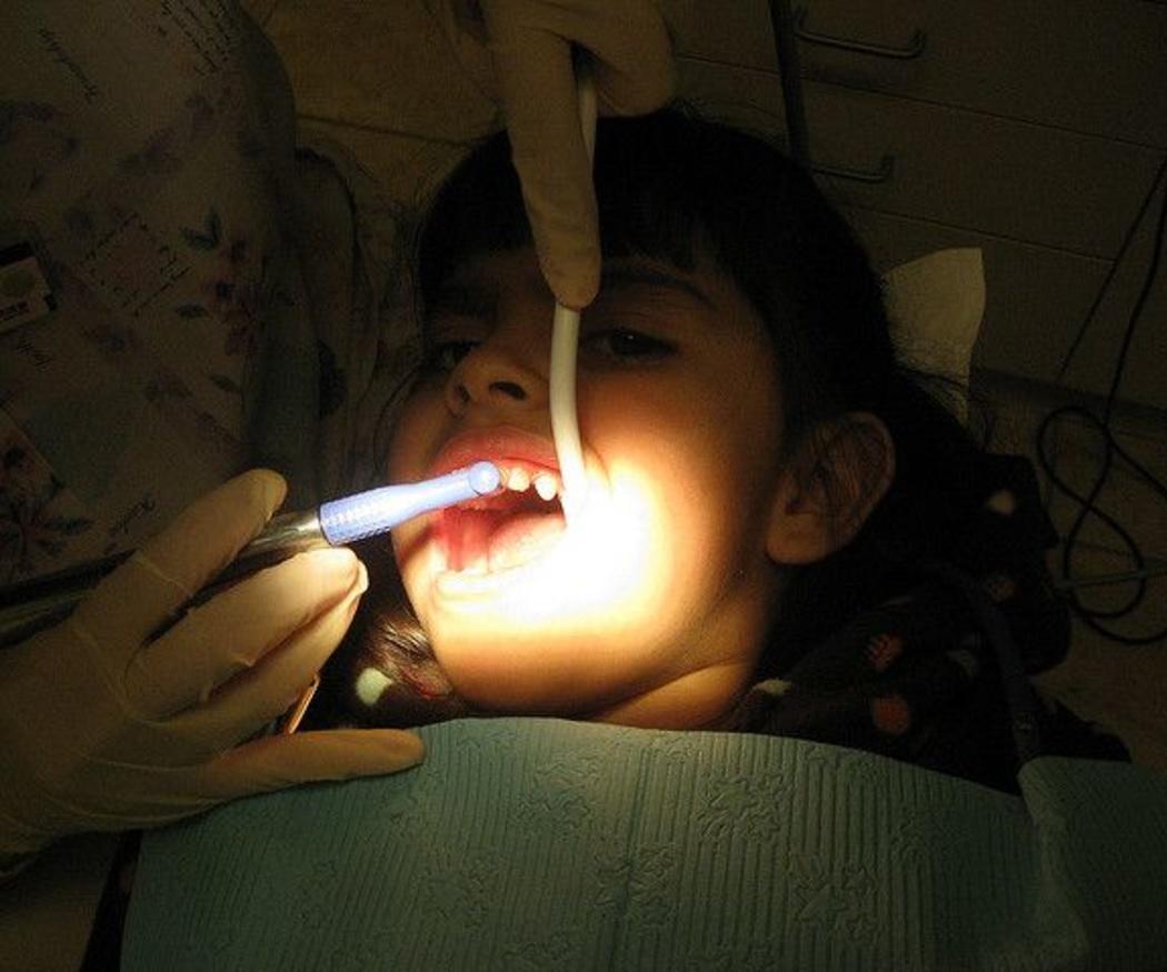 Consejos para tener unos dientes muy blancos