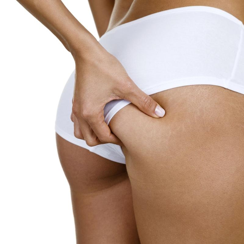 Tratamientos anticeluliticos, reductores y reafirmantes: Tratamientos estéticos de Centro de Belleza Venus