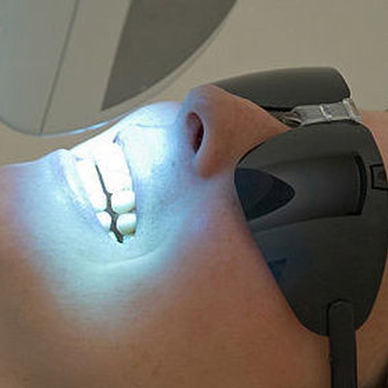 Blanqueamientos dentales: Tratamientos de Clínica Dental Dr. de la Torre