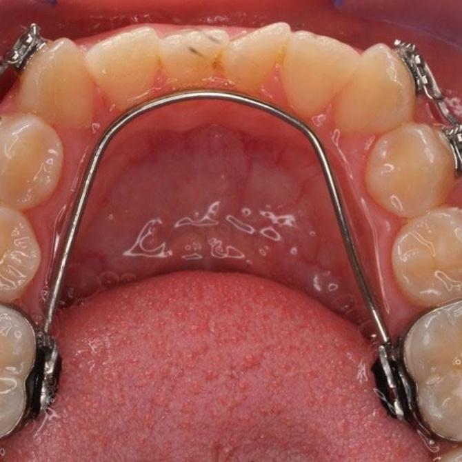 La ortodoncia lingual: sus características