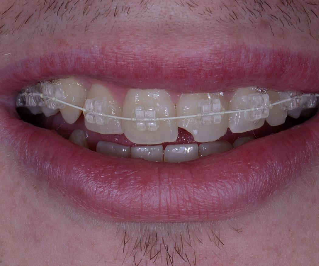 ¿Puedo ponerme una ortodoncia a partir de los 40 años?