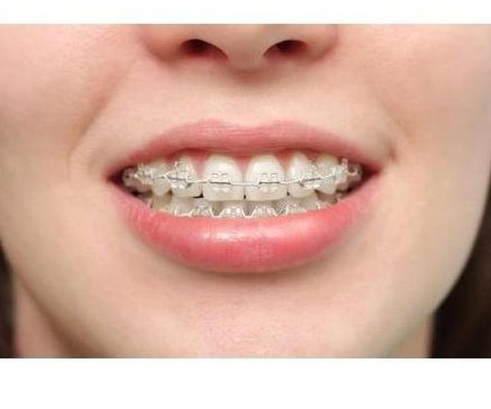 -20% Ortodoncia: Especialidades de Clínica Dental Jorge del Corral (cs4726)