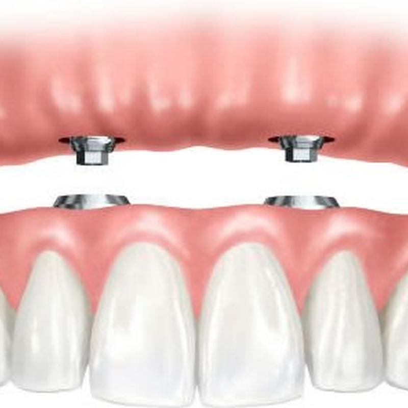 Prótesis: Tratamientos de Moncloa Clínica Dental