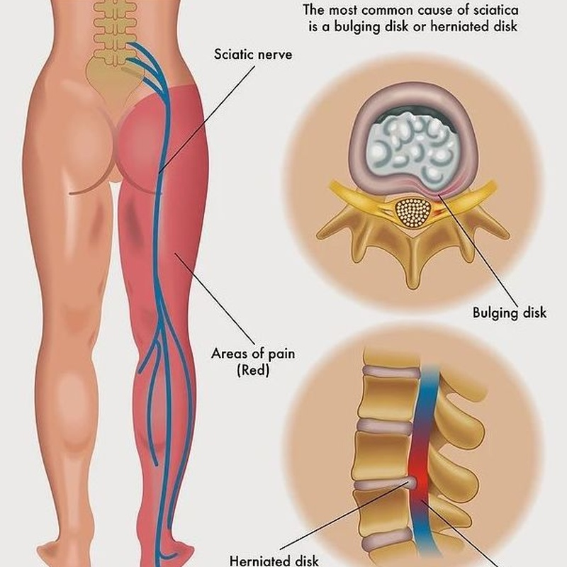 Pinzamiento nervioso: Síntomas y Problemas de Quiropràctic Manresa