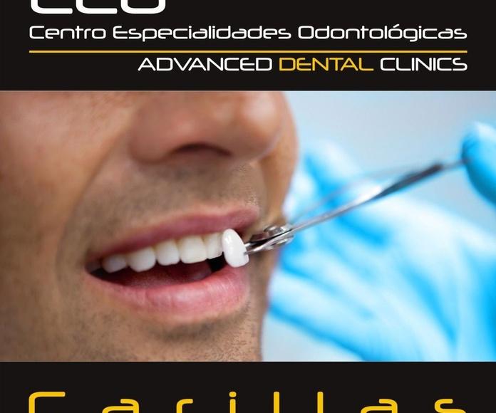 Carillas dentales: Tratamientos dentales de Centro Especialidades Odontologicas