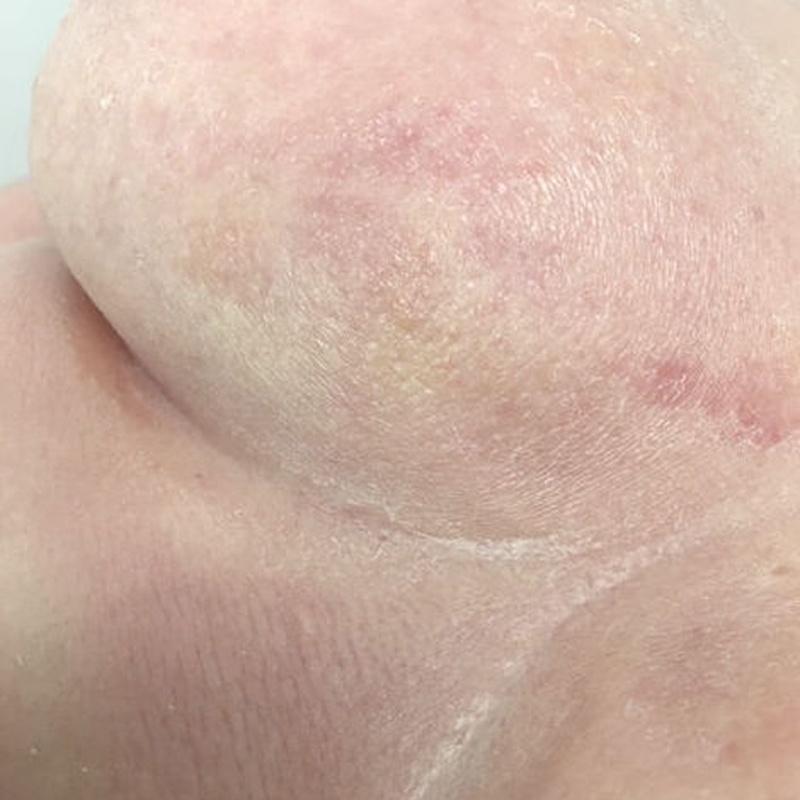 Linfoma de la piel