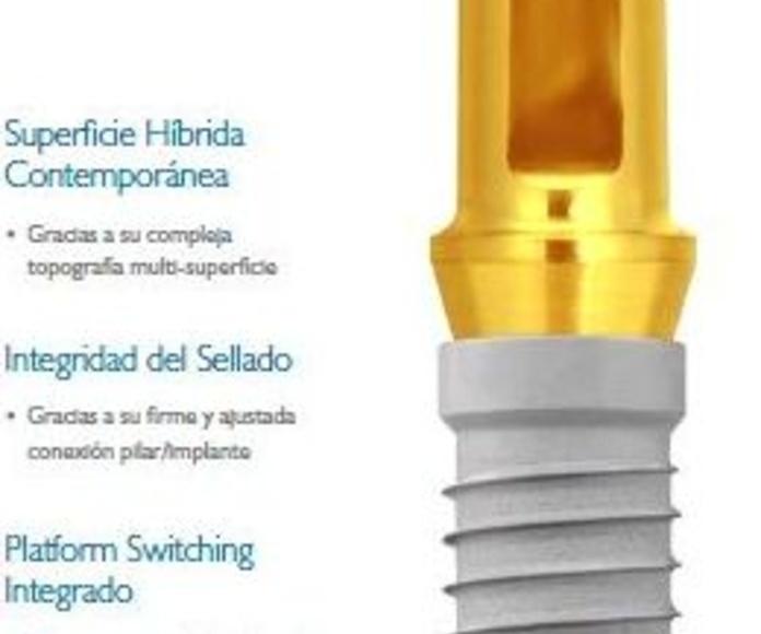 Implantes: Nuestros servicios de Clínica Dental Gándara