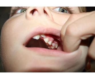 Otros tratamientos: Servicios dentales de Clínica Dental Ibañez Teruel