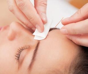 Acupuntura Aplicada a la Estética Facial & Corporal