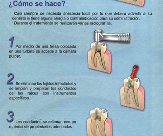 Implantología: Tratamientos de Clínica Dental García Villagrá