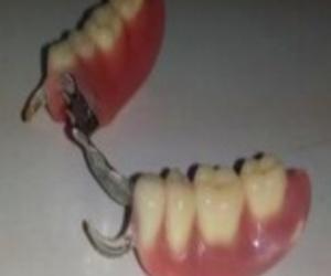 Prótesis removibles parcial