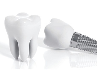 FÉRULA DENTAL: Tratamientos de Clínica dental tres D