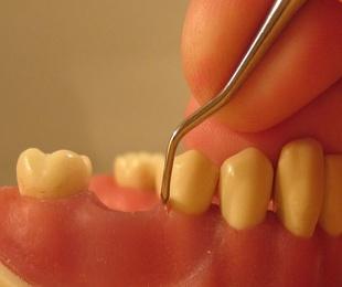 ¿Sabes de qué se ocupa la periodoncia?