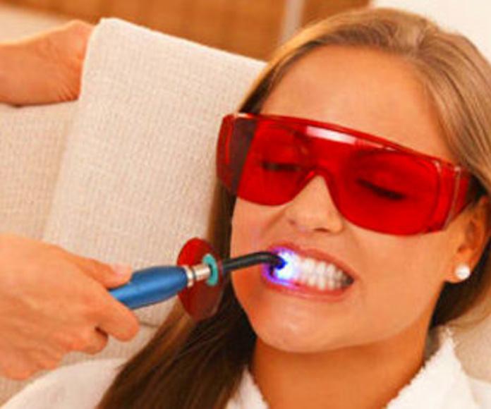 Blanqueamiento dental en Palma de Mallorca