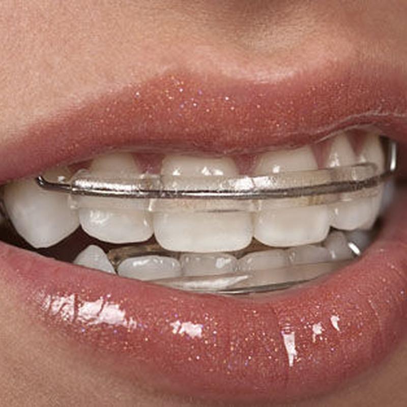Ortodoncia: Tratamientos  de Clínica Dental Integral Ermua