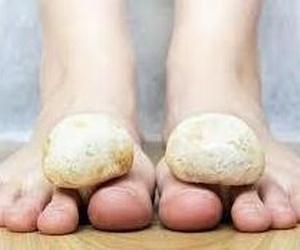 diagnostico de hongos en uñas , o planta del pie