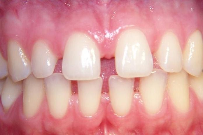 Carillas: Tratamientos Dentales de Clínica Dental Dra. Silvia Conca Chiumello