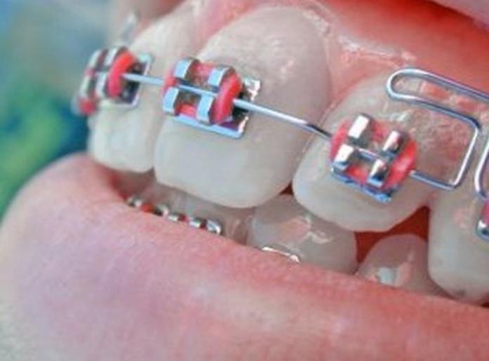 Ortodoncia: Servicios de Alfonso Ibáñez Fajardo