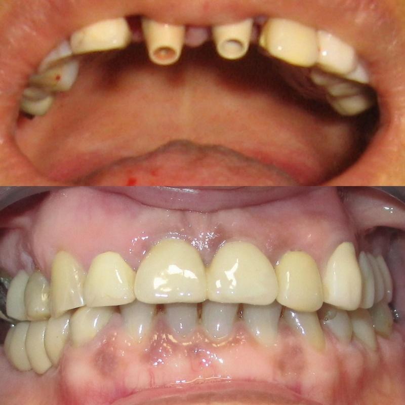 Pilares sobre implantes y resultado final de las coronas centrales