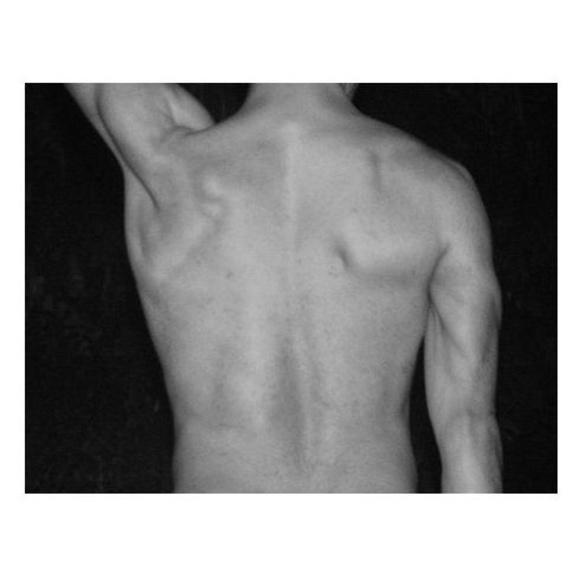 Depilación espalda: Tratamientos  de Jana Bosch Advanced Beauty