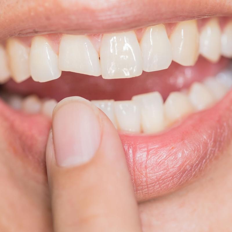 Carillas directas y restauraciones estéticas: Tratamientos de Centro Médico Dental Capitol
