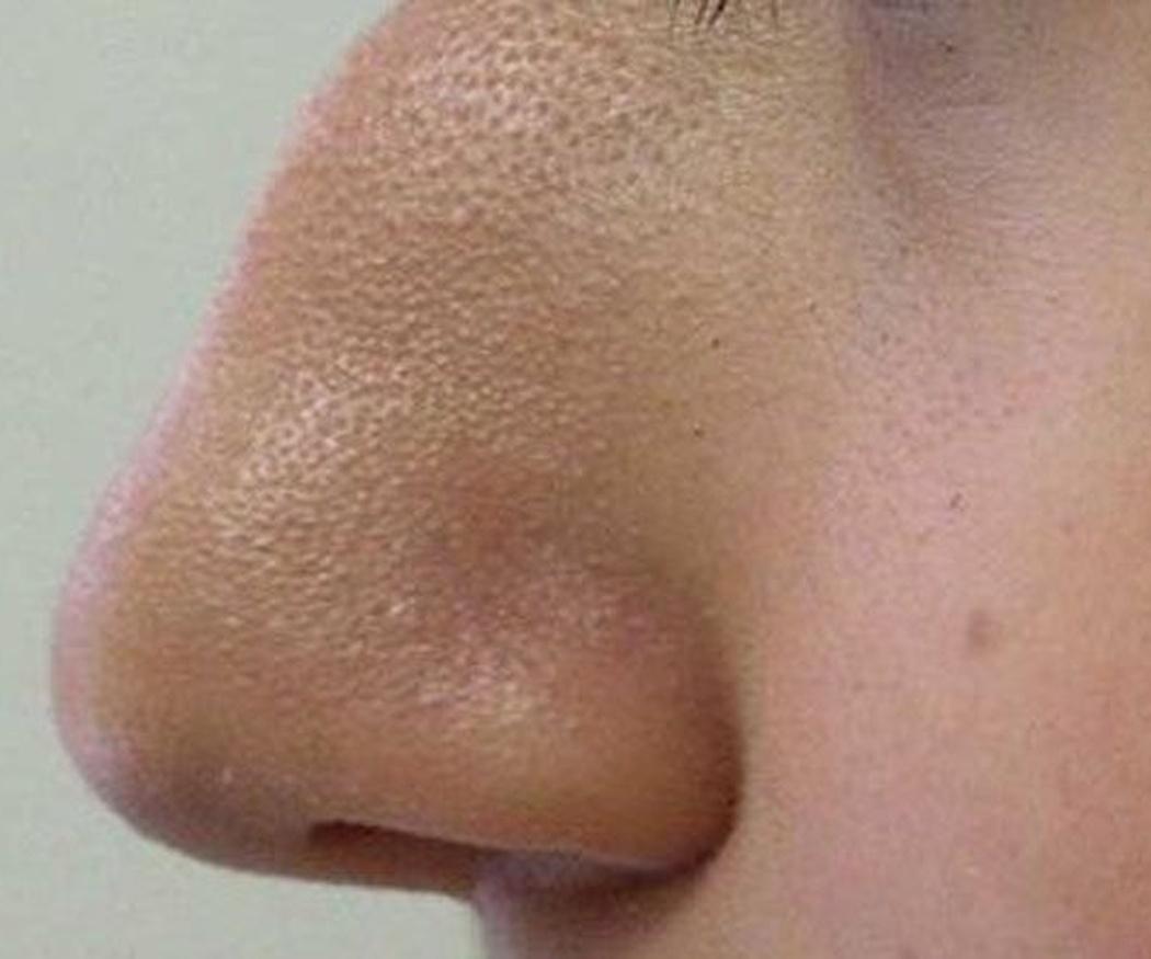 ¿Cuándo se recurre a una cirugía nasal?