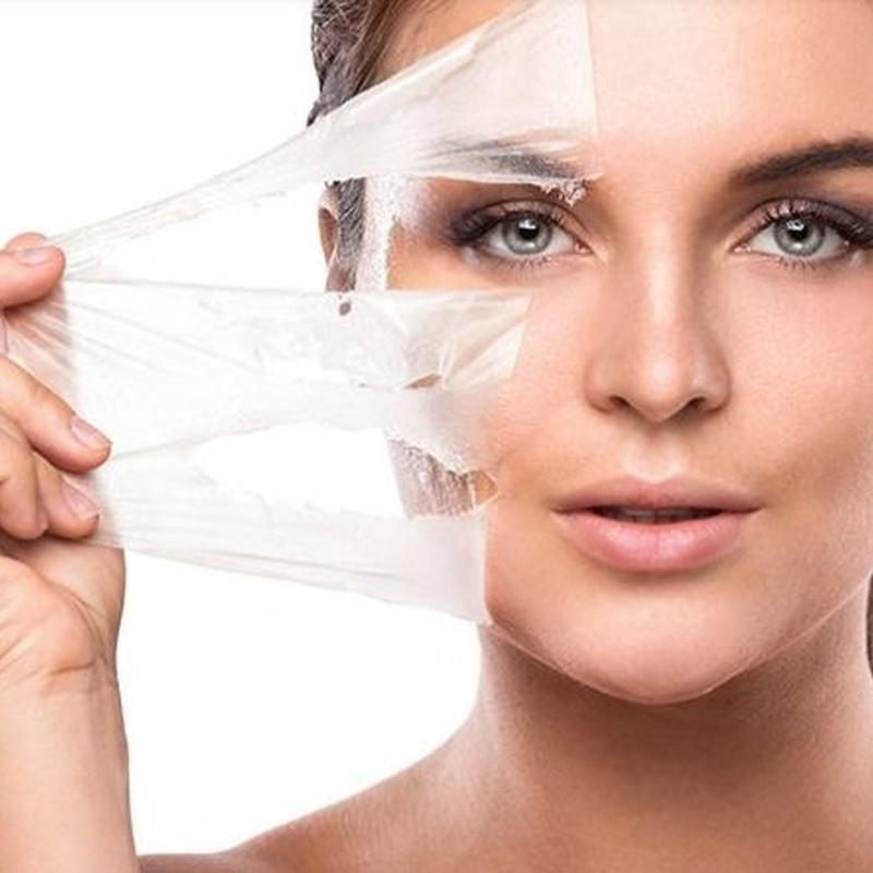 Peelings: Tratamientos de Aurea Esthetic
