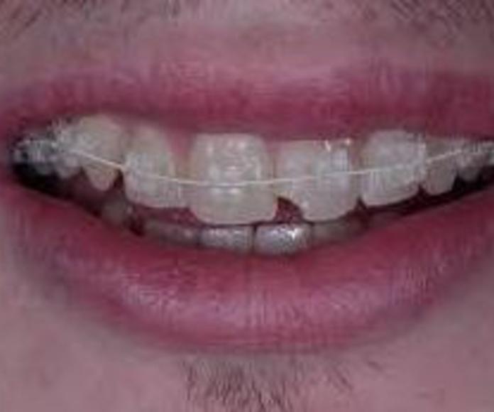 Ortodoncia invisible: Tratamientos dentales de Clínica Dental Flores