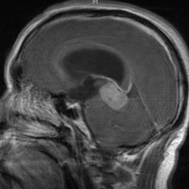 Patología craneoencefálica: Especialidades y publicaciones de Doctor Villarejo