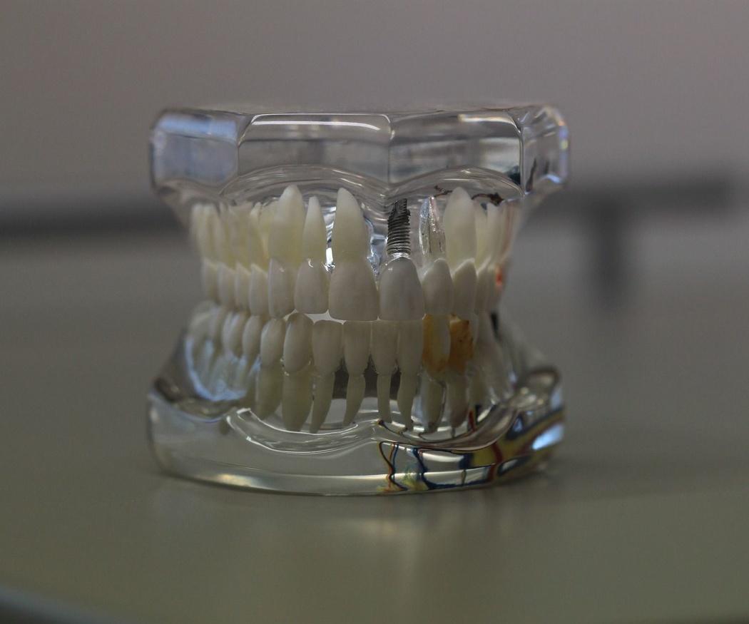 Tipos de prótesis para implantes dentales