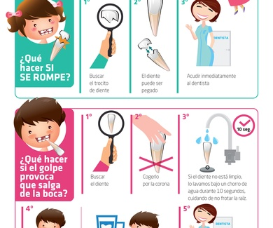 ¿Como salvar un diente tras un golpe?