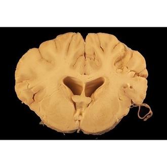 Distintos problemas neurológicos