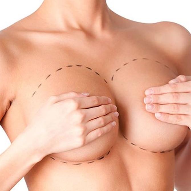 Falsos mitos sobre la cirugía de reducción mamaria