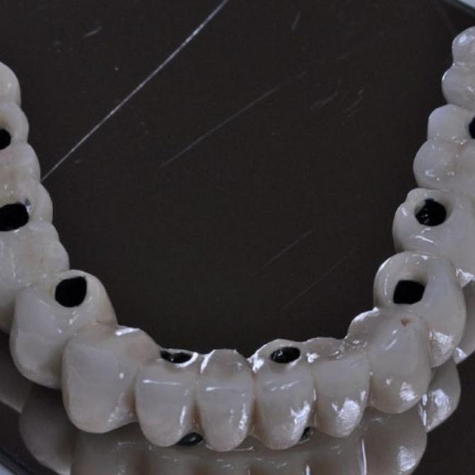 Las claves del éxito de los implantes dentales