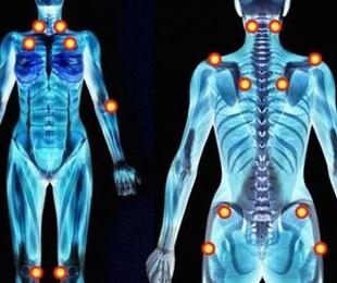 Fibromialgia y quiropráctica