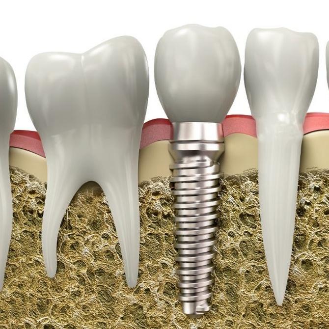 Toda la verdad sobre los implantes dentales