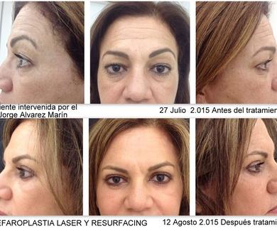 ANTES Y DESPUES tratamiento realizado por el Dr. Jorge Alvarez Marin