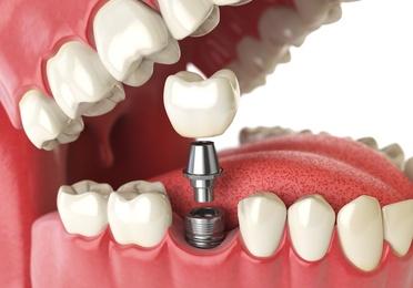 Rehabilitación y prótesis dental