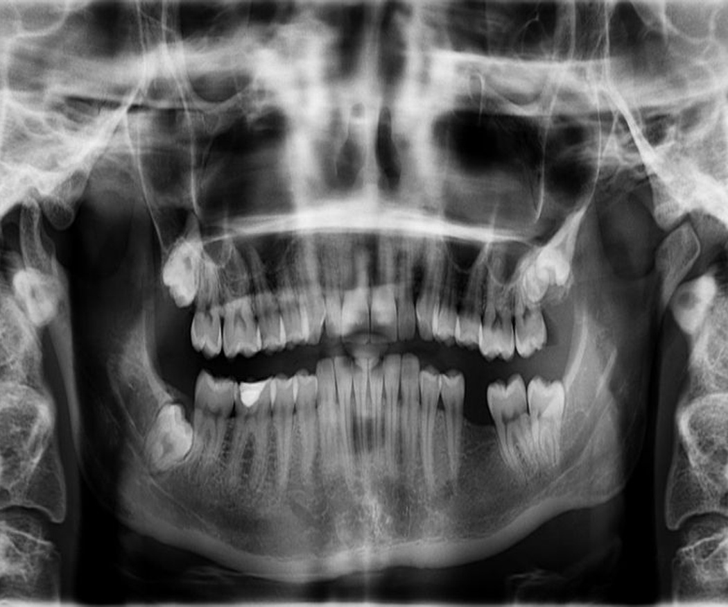 Nuestras radiografías dentales panorámicas
