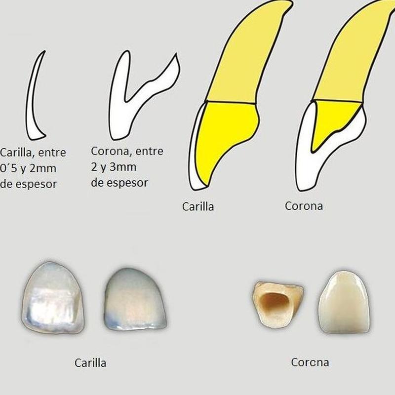 Diferencias entre carilla y corona